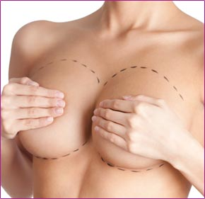Capsulectomy - Change or remove implants